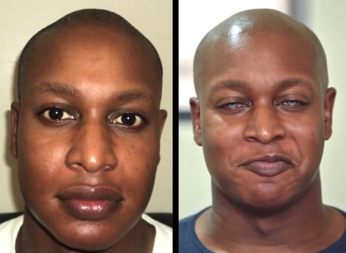 SAD or PRETTY? Man surgically changes EYE COLOR from brown to blue…